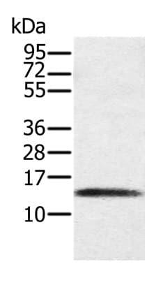 Western blot - Anti-AL5 antibody (ab198199)