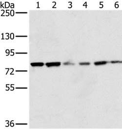 Western blot - Anti-NOX5 antibody (ab198213)