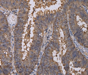 Immunohistochemistry (Formalin/PFA-fixed paraffin-embedded sections) - Anti-REG3G antibody (ab198216)
