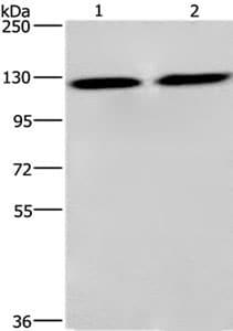 Western blot - Anti-CEP97 antibody - C-terminal (ab198221)