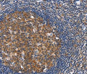 Immunohistochemistry (Formalin/PFA-fixed paraffin-embedded sections) - Anti-CEP97 antibody - C-terminal (ab198221)