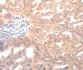 Immunohistochemistry (Formalin/PFA-fixed paraffin-embedded sections) - Anti-Osteocalcin antibody (ab198228)