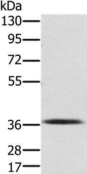 Western blot - Anti-PDLIM2 antibody - N-terminal (ab198244)