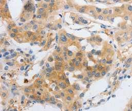 Immunohistochemistry (Formalin/PFA-fixed paraffin-embedded sections) - Anti-MyoD1 antibody - C-terminal (ab198251)