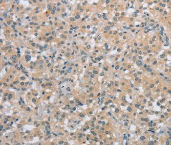 Immunohistochemistry (Formalin/PFA-fixed paraffin-embedded sections) - Anti-C2orf40/ECRG4 antibody (ab198271)