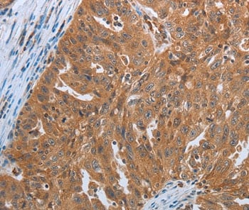 Immunohistochemistry (Formalin/PFA-fixed paraffin-embedded sections) - Anti-Sex Hormone Binding Globulin/SHBG antibody (ab198281)