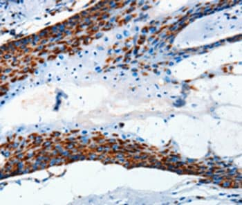 Immunohistochemistry (Formalin/PFA-fixed paraffin-embedded sections) - Anti-MTCO2 antibody (ab198286)