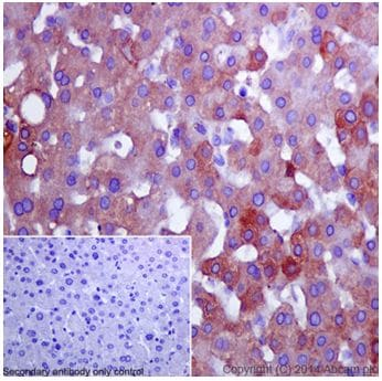 Immunohistochemistry (Formalin/PFA-fixed paraffin-embedded sections) - Anti-Apolipoprotein CI/Apo-CI antibody [EPR16813] (ab198288)