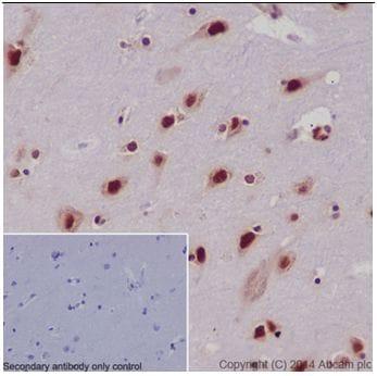Immunohistochemistry (Formalin/PFA-fixed paraffin-embedded sections) - Anti-SRSF3 antibody [EPR16976] (ab198291)