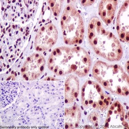 Immunohistochemistry (Formalin/PFA-fixed paraffin-embedded sections) - Anti-SNRPD2 antibody [EPR16762] (ab198296)