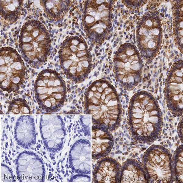 Immunohistochemistry (Formalin/PFA-fixed paraffin-embedded sections) - Anti-SDHB antibody [EPR10880] (Biotin) (ab198330)