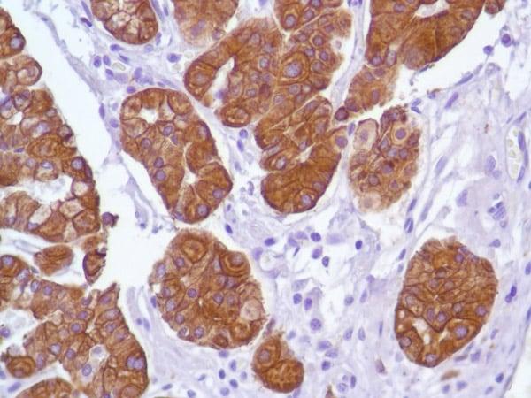 Immunohistochemistry (Formalin/PFA-fixed paraffin-embedded sections) - Anti-Cytokeratin 18 antibody [SP69] - BSA and Azide free (ab198380)