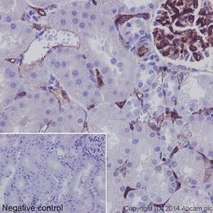 Immunohistochemistry (Formalin/PFA-fixed paraffin-embedded sections) - Anti-CD34 antibody [EP373Y] - BSA and Azide free (ab198395)