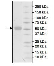 SDS-PAGE - Recombinant human MMP1 protein (Active) (ab198437)