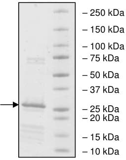 SDS-PAGE - Recombinant human XIAP protein (ab198451)