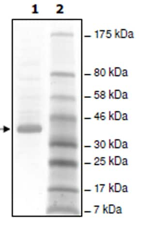 SDS-PAGE - Recombinant Human Angiopoietin 1 protein (ab198474)