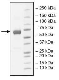 SDS-PAGE - Recombinant Human VISTA protein (Fc Chimera) (ab198480)