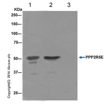 Immunoprecipitation - Anti-PPP2R5E antibody [EPR17147] - C-terminal (ab198500)