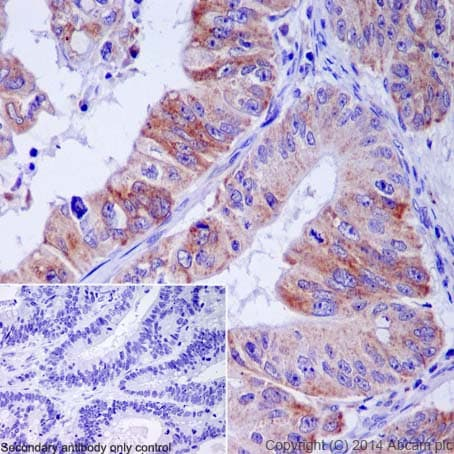 Immunohistochemistry (Formalin/PFA-fixed paraffin-embedded sections) - Anti-CXCL5 + CXCL6 antibody [EP13083] (ab198505)