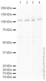 Western blot - Anti-BRD2 antibody [EPR7642] (HRP) (ab198536)