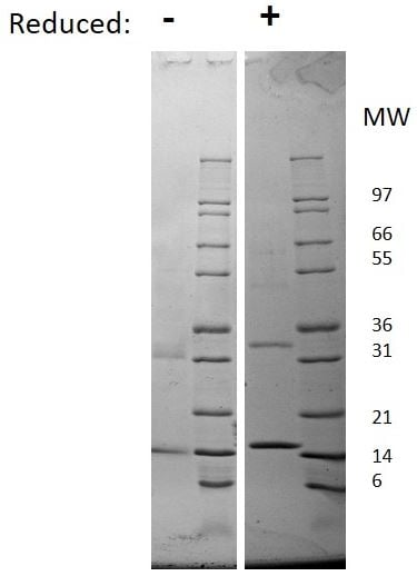 SDS-PAGE - Recombinant rat GM-CSF protein (ab198565)
