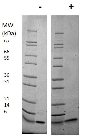 SDS-PAGE - Recombinant mouse IGF1 protein (ab198569)