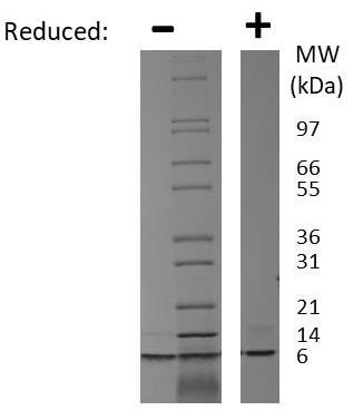 SDS-PAGE - Recombinant rat IGF1 protein (ab198570)