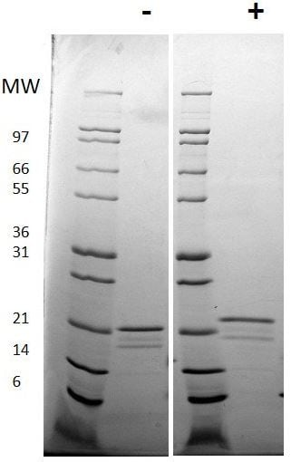 SDS-PAGE - Recombinant human IL-6 protein (ab198571)