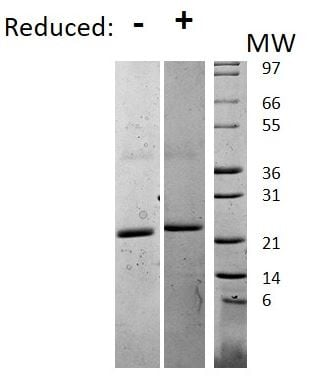 SDS-PAGE - Recombinant mouse IL-6 protein (ab198572)