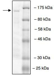 SDS-PAGE - Recombinant human RNF20 protein (ab198645)