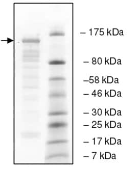 SDS-PAGE - Recombinant human UBPY/USP8 protein (ab198666)