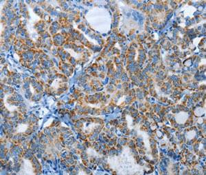 Immunohistochemistry (Formalin/PFA-fixed paraffin-embedded sections) - Anti-AGL/Alpha-glucosidase antibody (ab198713)
