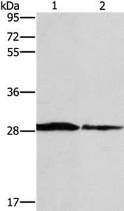 Western blot - Anti-SPR antibody - C-terminal (ab198716)