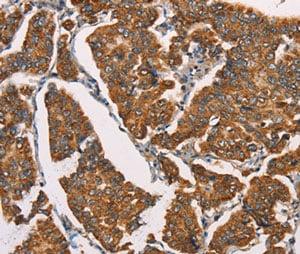 Immunohistochemistry (Formalin/PFA-fixed paraffin-embedded sections) - Anti-SPR antibody - C-terminal (ab198716)