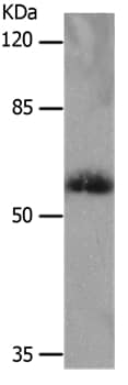 Western blot - Anti-SLC16A4/MCT4 antibody - N-terminal (ab198736)