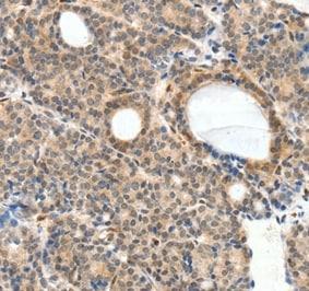 Immunohistochemistry (Formalin/PFA-fixed paraffin-embedded sections) - Anti-NFAT1 antibody - N-terminal (ab198748)