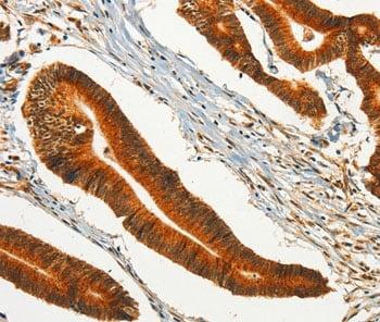 Immunohistochemistry (Formalin/PFA-fixed paraffin-embedded sections) - Anti-CHRDL2 antibody (ab198786)