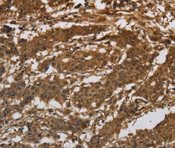 Immunohistochemistry (Formalin/PFA-fixed paraffin-embedded sections) - Anti-Integrin beta 7 antibody (ab198796)