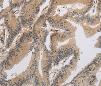 Immunohistochemistry (Formalin/PFA-fixed paraffin-embedded sections) - Anti-ITIH1/SHAP antibody (ab198809)