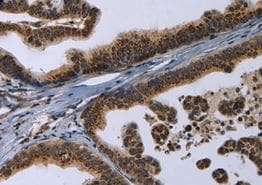 Immunohistochemistry (Formalin/PFA-fixed paraffin-embedded sections) - Anti-Reg3a antibody (ab198824)