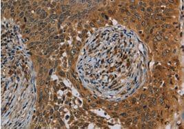 Immunohistochemistry (Formalin/PFA-fixed paraffin-embedded sections) - Anti-Oncostatin M/OSM antibody (ab198830)