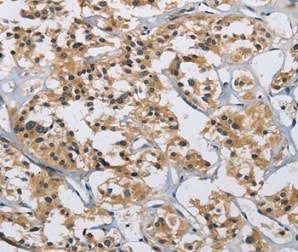 Immunohistochemistry (Formalin/PFA-fixed paraffin-embedded sections) - Anti-IL-12RB2 antibody (ab198833)