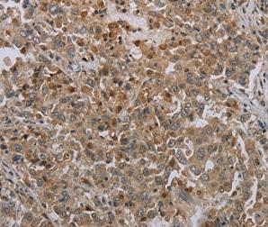 Immunohistochemistry (Formalin/PFA-fixed paraffin-embedded sections) - Anti-MIG-6 antibody (ab198834)