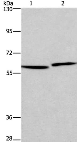 Western blot - Anti-HAS1 antibody (ab198846)