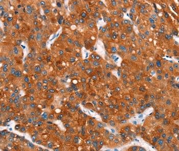 Immunohistochemistry (Formalin/PFA-fixed paraffin-embedded sections) - Anti-MT-CYB antibody (ab198860)