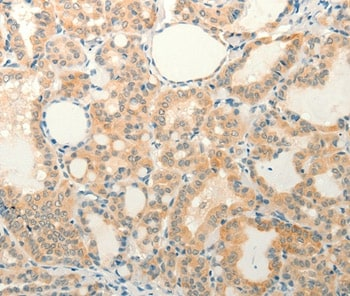 Immunohistochemistry (Formalin/PFA-fixed paraffin-embedded sections) - Anti-FAT3 antibody (ab198861)