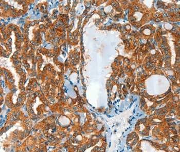 Immunohistochemistry (Formalin/PFA-fixed paraffin-embedded sections) - Anti-CLPTM1L antibody (ab198862)