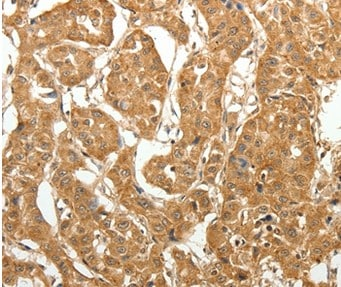 Immunohistochemistry (Formalin/PFA-fixed paraffin-embedded sections) - Anti-MAP1B antibody (ab198890)