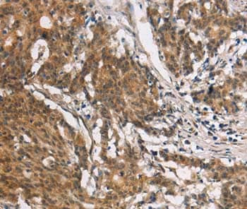 Immunohistochemistry (Formalin/PFA-fixed paraffin-embedded sections) - Anti-Collagen VII antibody (ab198899)