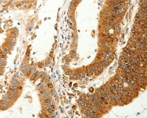 Immunohistochemistry (Formalin/PFA-fixed paraffin-embedded sections) - Anti-RARRES1 antibody (ab198908)